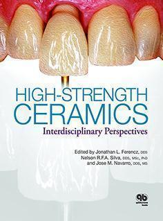 HIGH - STRENGTH  CERAMICS  2014 - دندانپزشکی