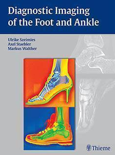 DIAGNOSTIC IMAGING OF THE FOOT AND ANKLE 2015 - رادیولوژی