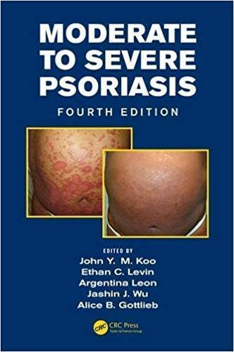 Moderate to Severe Psoriasis  2014 - پوست