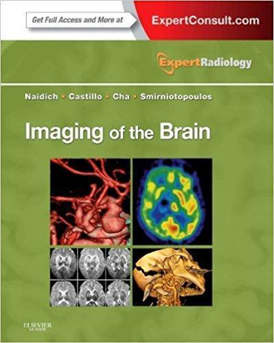 Imaging of the Brain  2013 - رادیولوژی