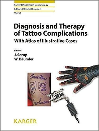 Diagnosis and Therapy of Tattoo Complications  2017 - پوست