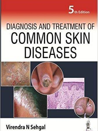 Diagnosis and Treatment of Common Skin Diseases 2016 - پوست