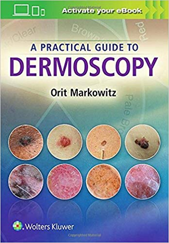 A Practical Guide to Dermoscopy  2017 convert to PDF - پوست