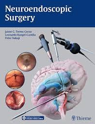 Neuroendoscopic Surgery 2016 - نورولوژی